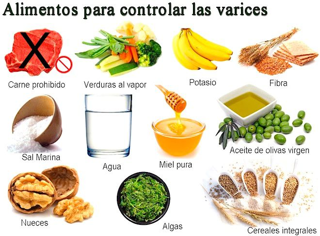 tratamiento para varices natural