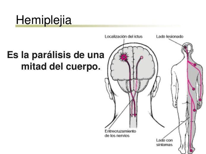 hemiplejia