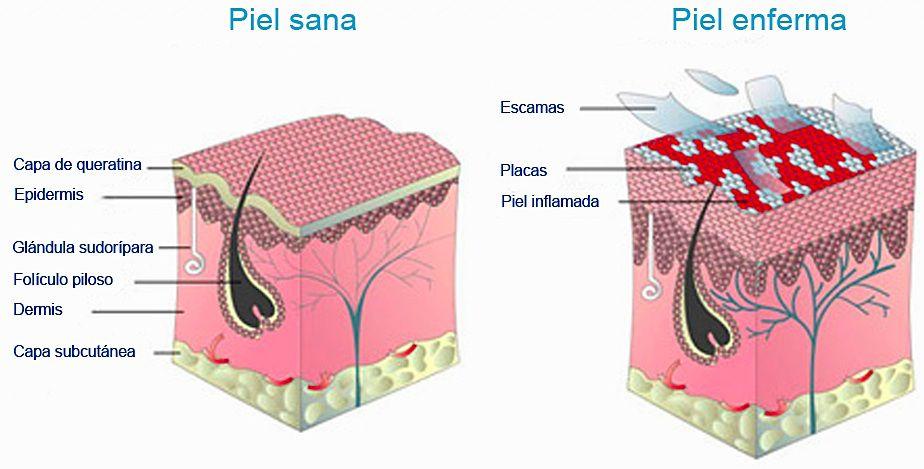 Tabaco y psoriasis