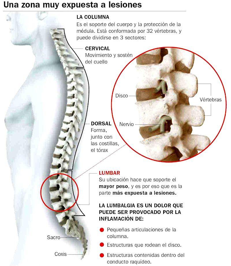 dolor_espalda