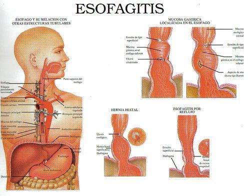 esofagitis1