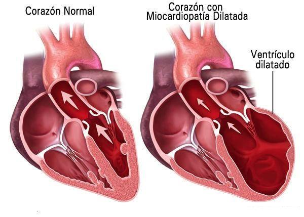 miocardiopatiadilatada
