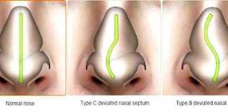 tabique-nasal-desviado
