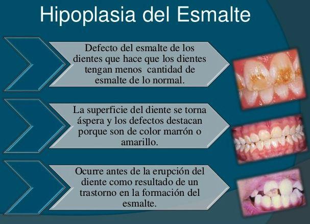 Hipoplasia dientes