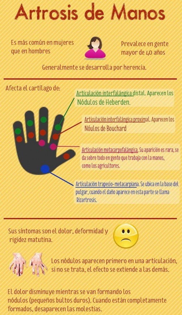 artrosis-de-manos2