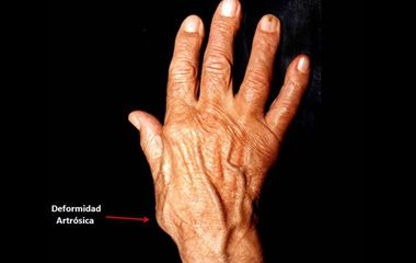 artrosis pulgar