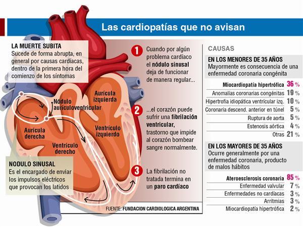 cardiopatias
