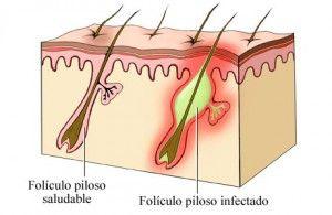 foliculitis