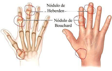 nodulos artrosis