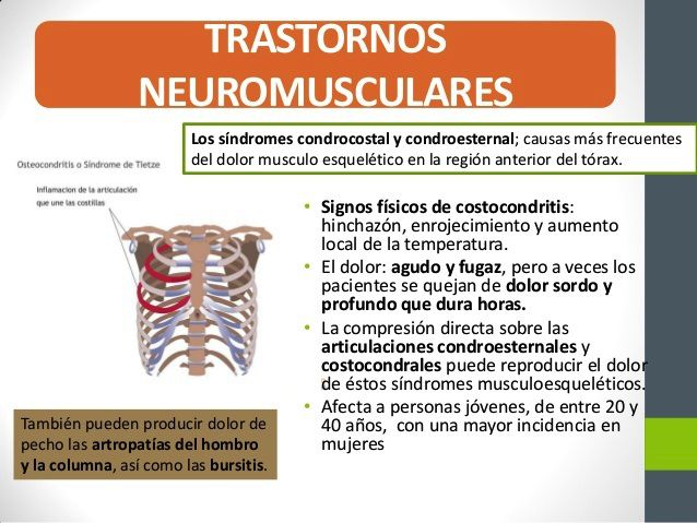 Costocondritis3