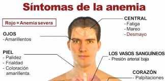 anemia-sintomas