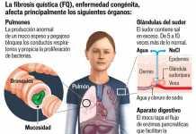 fibrosis-quistica