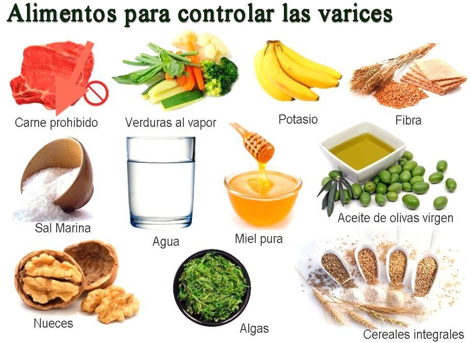 varices-alimnetacion