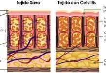 celulitis1