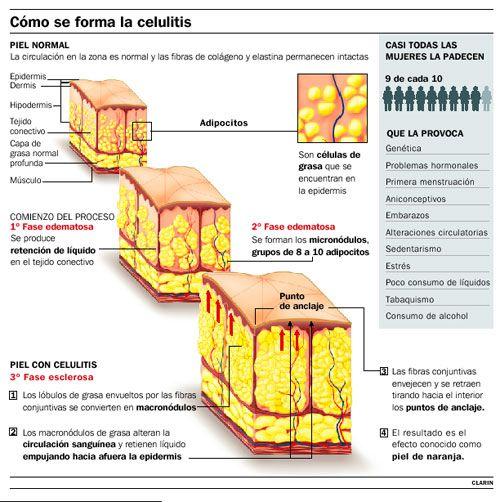 celulitis3