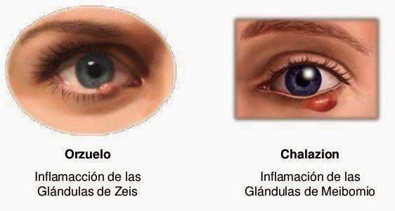 chalazion2