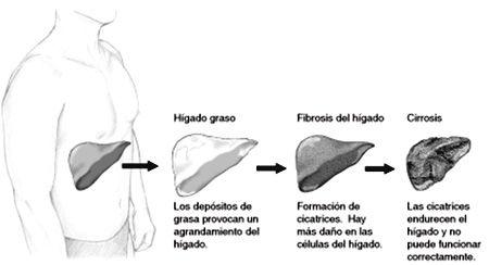 higado-fibrosis-cirrosis