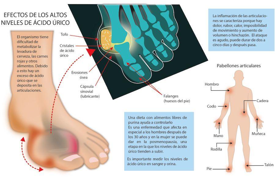 medicamento para acido urico en los pies dietas para pacientes con acido urico que medicamento es bueno para bajar el acido urico