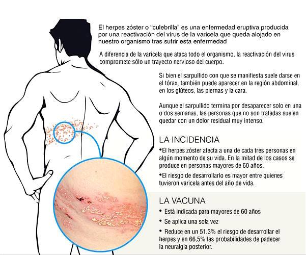 culebrilla-herpes