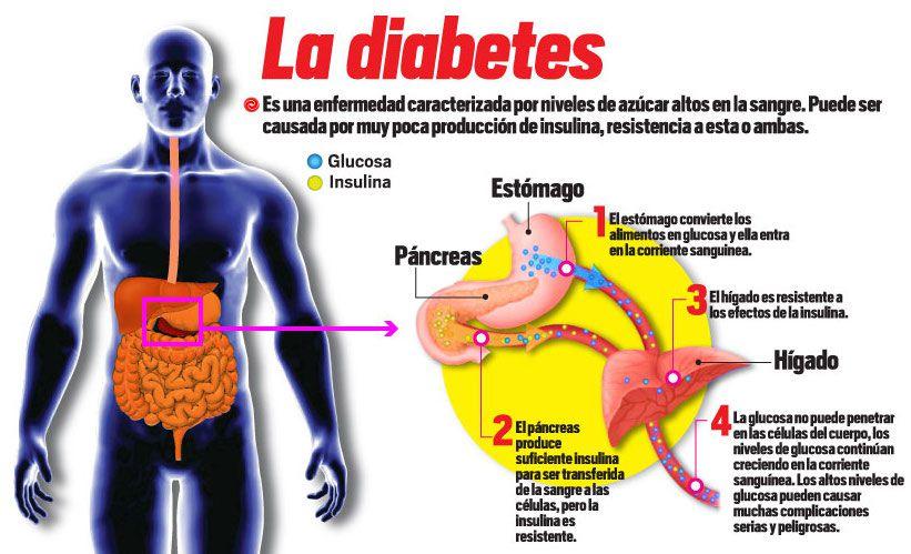 diabetes-post-vacacional