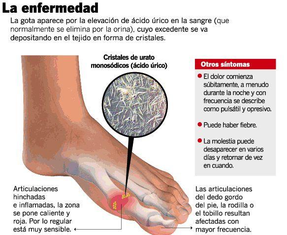 alimentos que tengan acido urico el acido urico puede afectar la rodilla te de perejil para el acido urico