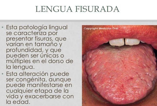 lenguaconfisuras