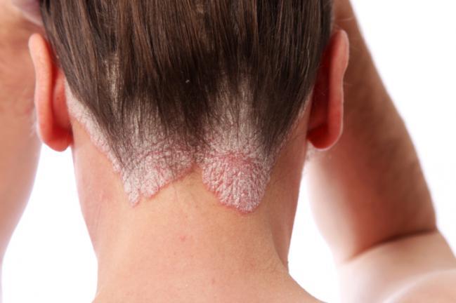 psoriasis-cabello