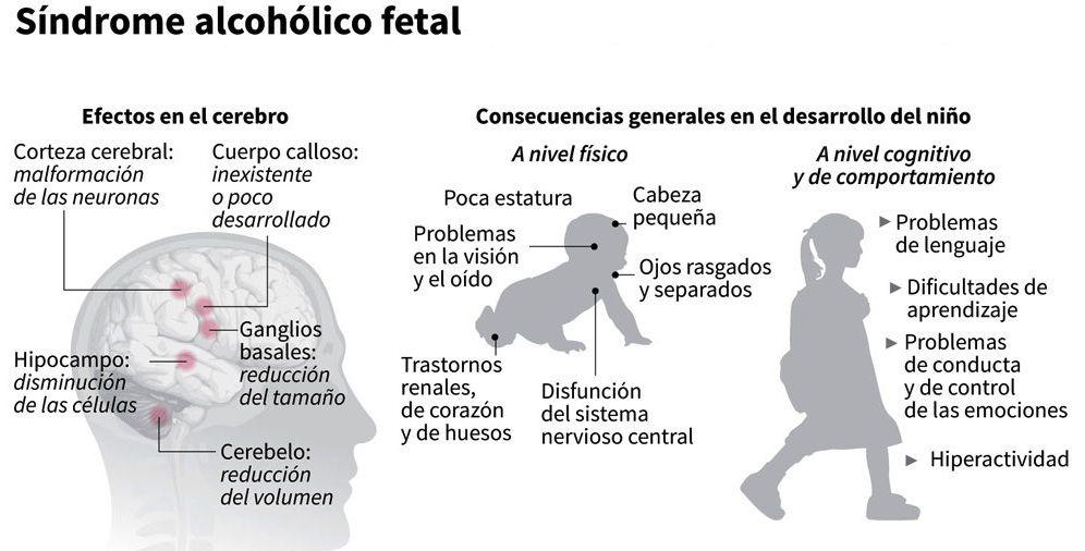 alcohol-feto