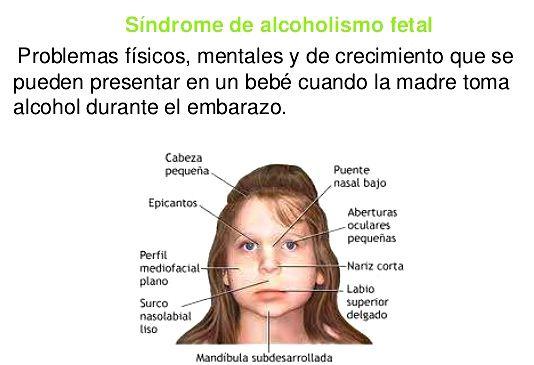 El alcoholismo y el embarazo de la consecuencia para el niño