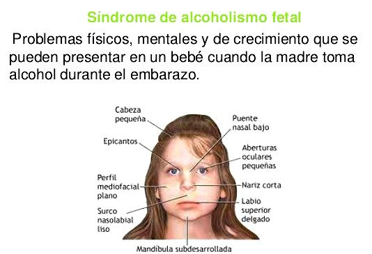 Como revelar el alcoholismo a la persona