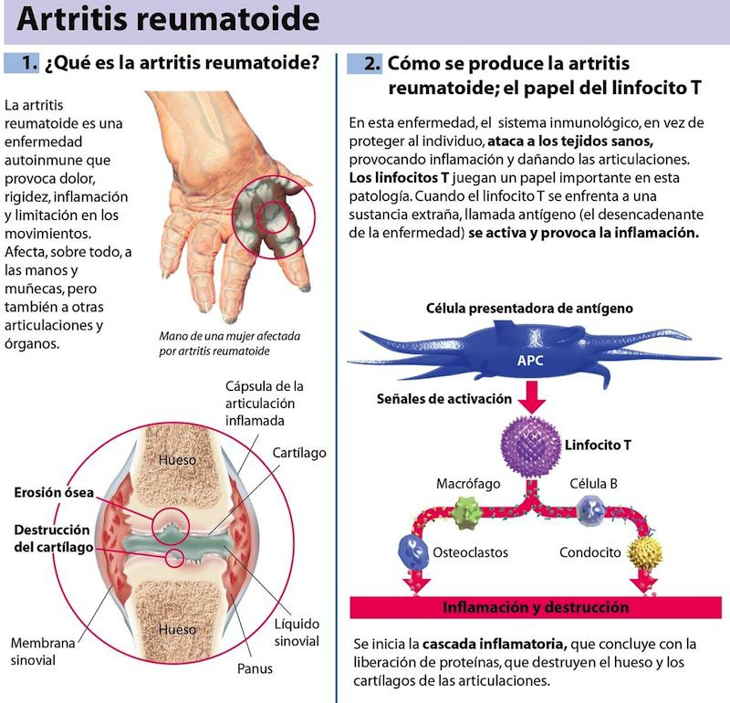 artritisreumatoide