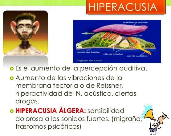 hiperacusia