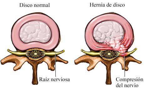 nerviocomprimido