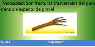 tricoclasia