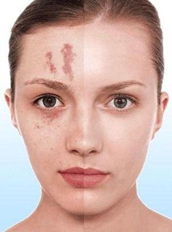 Dermatitis por maquillaje