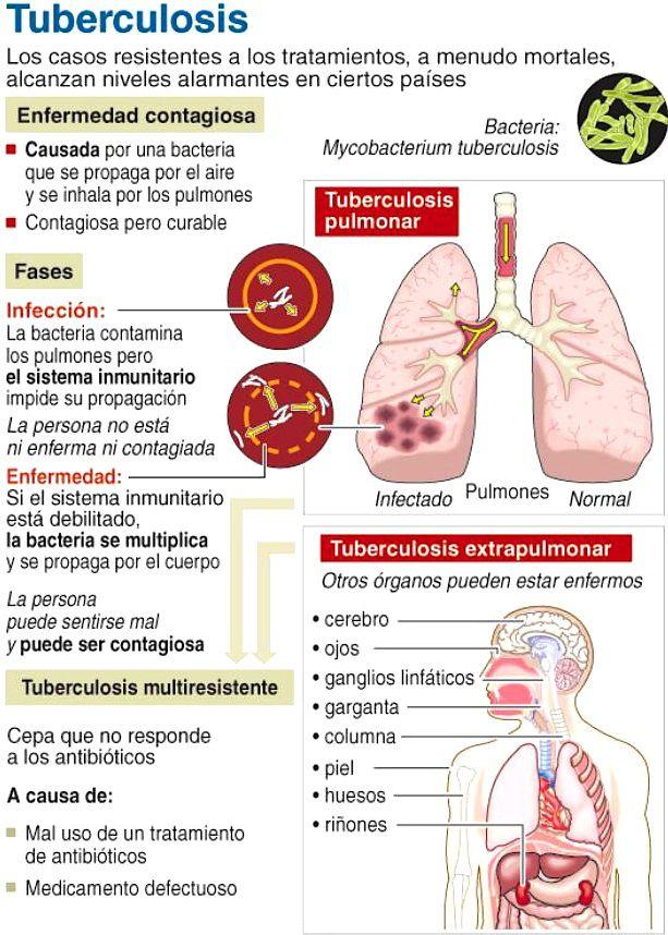 tuberculosis1