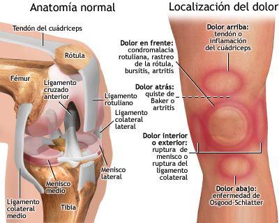 dolor-rodillas