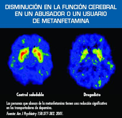 metanfetaminas1