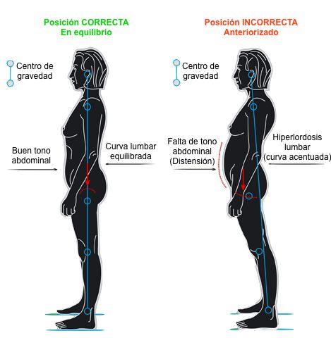 hiperlordosis-lumbar