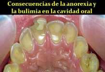 anorexia-dental