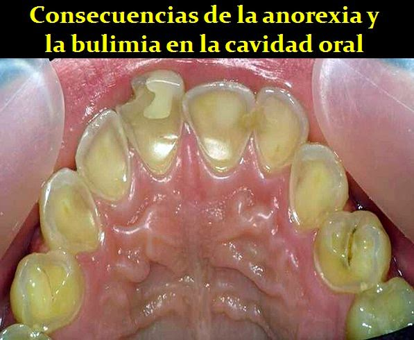 anorexia-dental