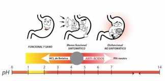 hipoclorhidria