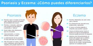 psoriasis-eczemas