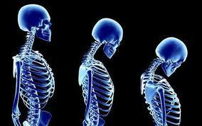 Cómo-prevenir-la-osteoporosis-de-forma-temprana