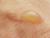 Cómo tratar a las ampollas en los pies para evitar una infección mayor