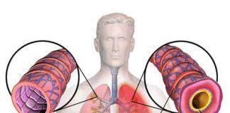 Como-se-presenta-la-bronquitis-en-nuestro-organismo