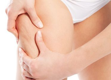 Consejos para eliminar la celulitis