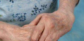Existe-una-asociación-entre-la-artritis-reumatoide-y-el-riesgo-de-coágulos