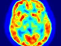 Investigadores determinan un mapa de la visión en el cerebro