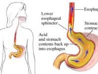 Los síntomas de reflujo ácido y de intestino irritable suelen superponerse